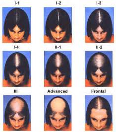 how wide is a normal hairline part tests for diagnosing women s hair loss