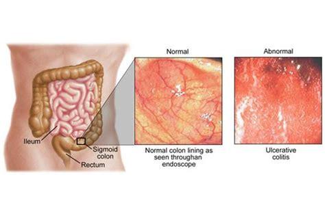 rettocolite ulcerosa alimentazione colite ulcerosa cause e sintomi apparato digerente