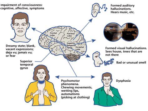focal motor seizure symptoms epilepsy partial motor focal motor epilepsy motor