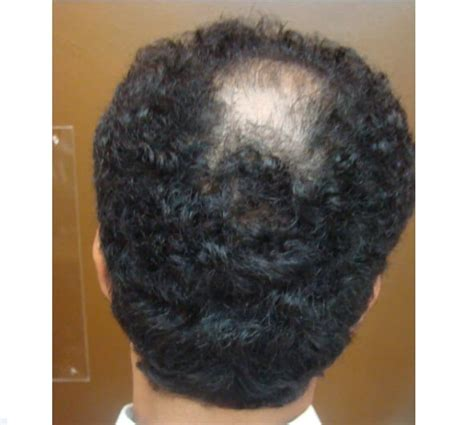 diffuse hair loss male pattern baldness what is diffuse patterned alopecia dpa and its treatment