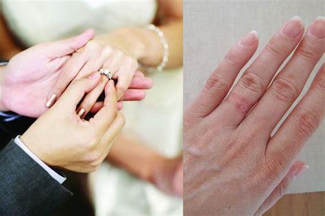 Wedding Ring Nickel Allergy by Cool Wedding Ring 2016 Allergy To Wedding Ring Nickel