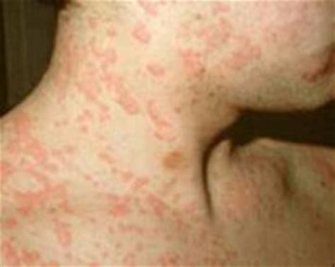 Mold Rashes On Skin | skin rash caused by mold nyc