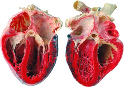 cross section of human heart humanphysiology2011 06 cardiology
