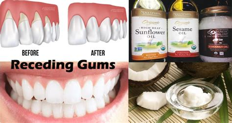 Gums Pulling Away From Teeth Home Remedy by Home Remedies For Receding Gums