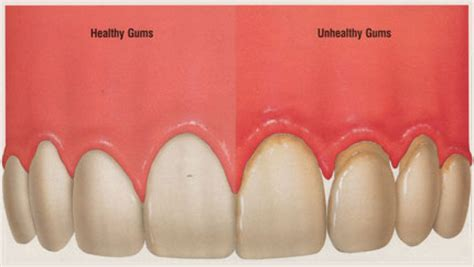 healthy gum color healthy gums look like