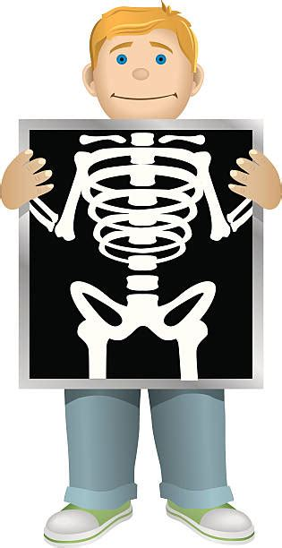 x ray x ray clipart vector pencil and in color x ray clipart