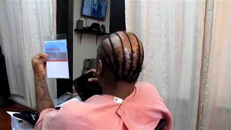 weaving techniques  alopecia hair loss youtube