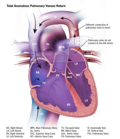 warden procedure diagram anomalous pulmonary venous connection