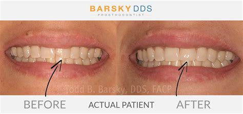 fix  chipped  broken tooth  dr barsky  miami