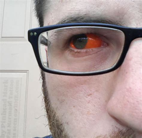 eye tattoo infection oculolinctus yes this is a thing the outrageously insane