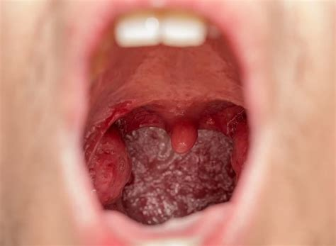 Tongsis Tongsis holes in tonsils common causes and home treatments