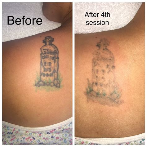 sf tattoo removal be sf 66 photos 106 reviews