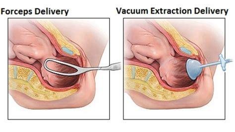 pooping after c section accouchement un sac plastique pour remplacer forceps et