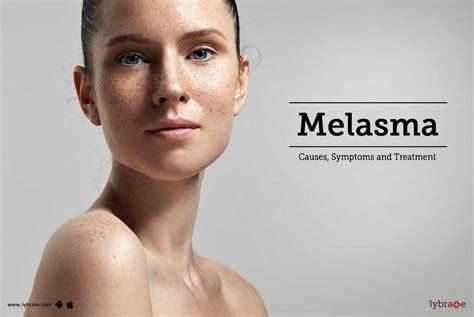 Melasma 5 In 1 melasma causes symptoms and treatment by dr sham lal sharma lybrate