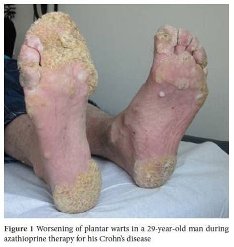 diseased skin plantar warts warts are a form of
