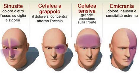 curare mal di testa 4 tipi di mal di testa e come curarli senza farmaci