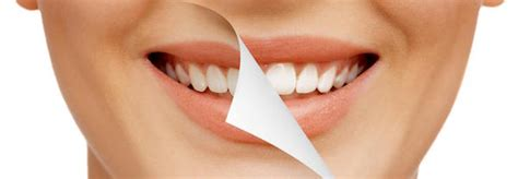 teeth whitening home remedies bondi dental
