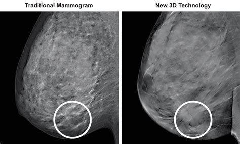3D Mammography (TM)   Medical Associates of Northwest Arkansas