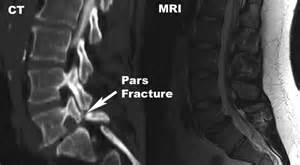 Png pars interarticularis defect at l5 s1 with anterolisthesis of l5