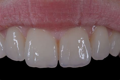 piombatura denti ceramica integrale l incredibile verita