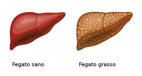 alimentazione per il fegato grasso steatosi epatica o fegato grasso sintomi dieta e tutto