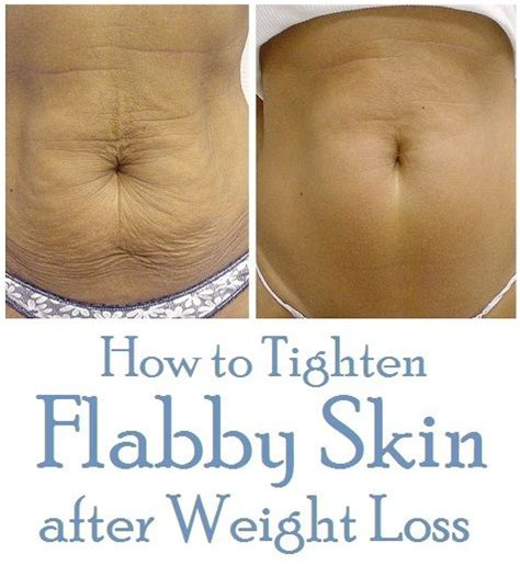 How To Tighten Skin After Weight Loss by How To Tighten Flabby Skin After Weight Loss Health