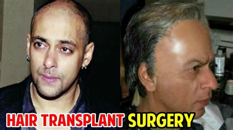 srk hair transplant shahrukh khan hair transplant welcome to dr akhil agarwal