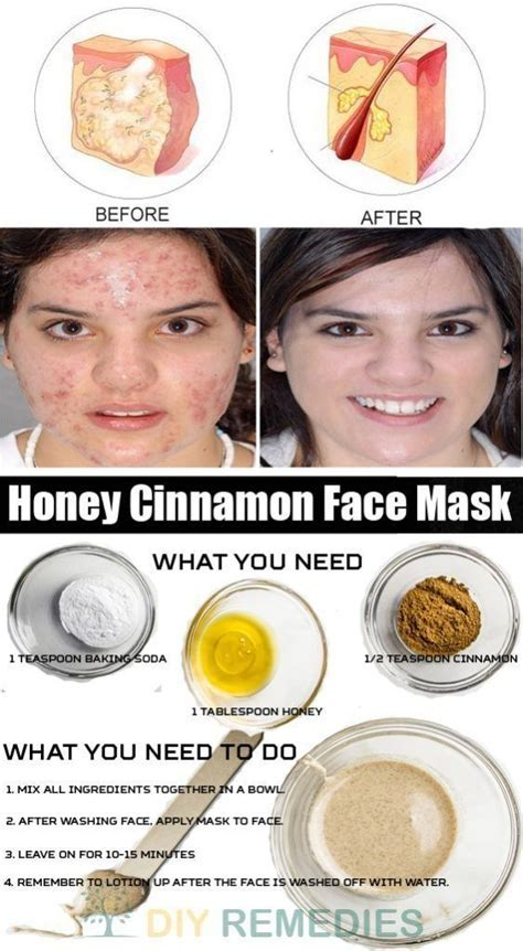 Best 25  Acne mask ideas on Pinterest   Diy acne mask