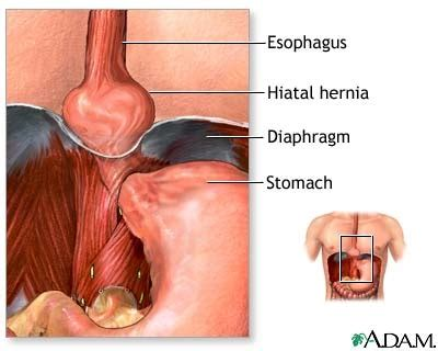 hiatal herniathis    ins auth      tuesday woot
