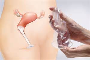 Female Condom Effectiveness » Home Design 2017