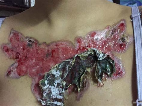 chest tattoo healing process women left with horrific scar after her tattoo falls off