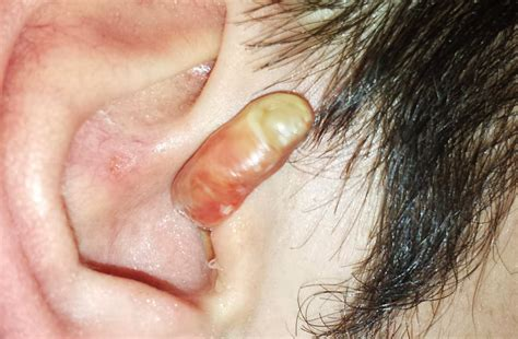 cyst on mystery object protrudes from ear with results cystbursting