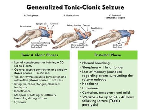 General Tonic tonic clonic seizure www pixshark images galleries with a bite