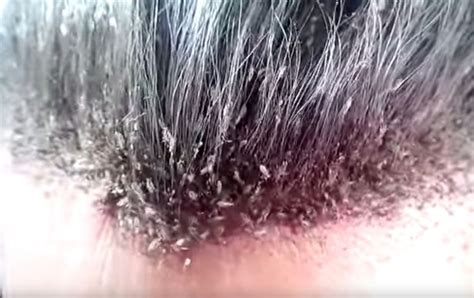 lice images this of a s disgusting lice infestation