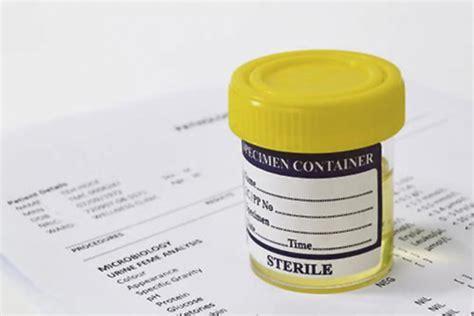 tappeto di batteri nelle urine batteri alti nelle urine fare cause valori