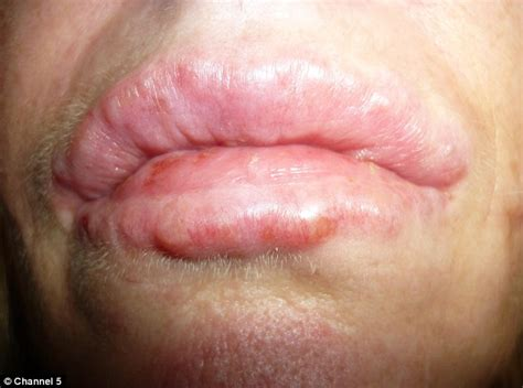why would someone be covered in sores woman 41 left disfigured after permanent lip filler