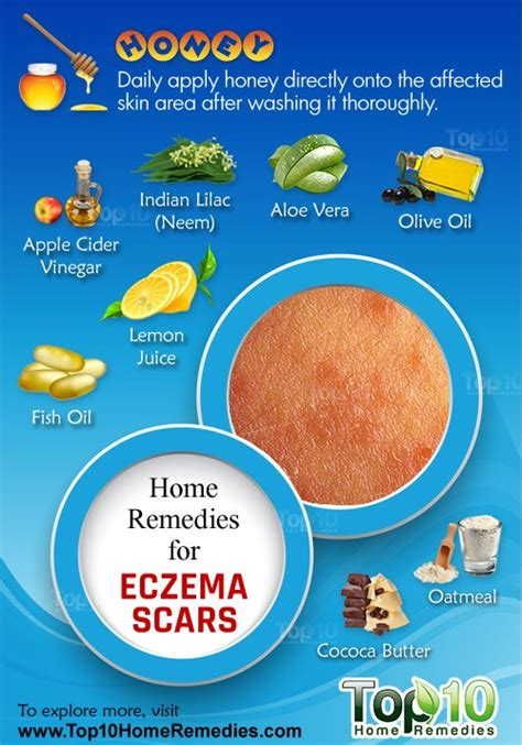 home remedies for eczema scars top 10 home remedies