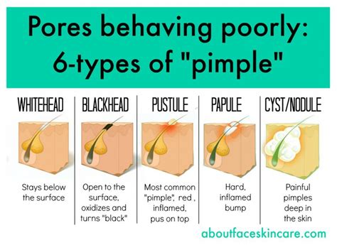 diagram of a pimple related keywords suggestions for pimple diagram