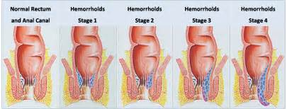what color are hemorrhoids hemorrhoids during pregnancy causes symptoms and