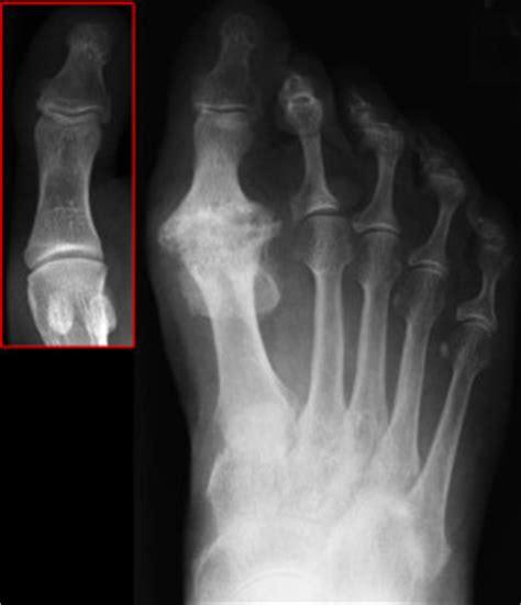 Jogger Claw Big hallux rigidus symptome ursachen behandlungsm 246 glichkeiten