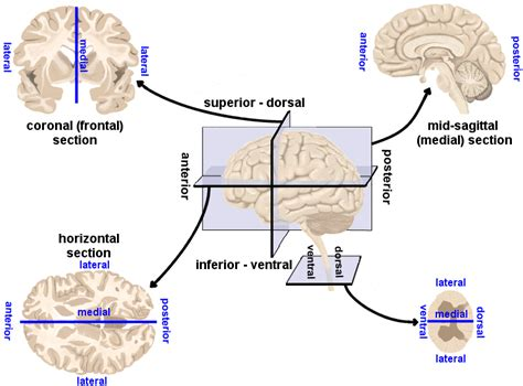 types of cross sections human brain directions cross sections and divisions
