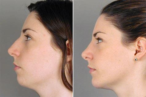pictures of a woman s neck and jaw line chin augmentation new jersey parker center for plastic