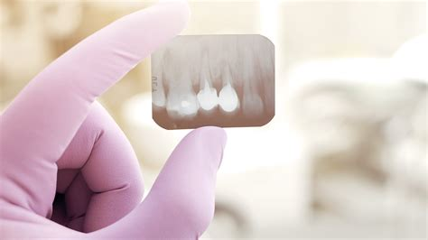 comfort dental broomfield dental cavity fillings in broomfield treatment at retro