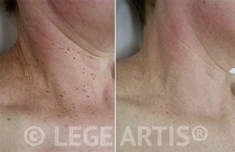skin tag removal skin tag removal toronto lege artis