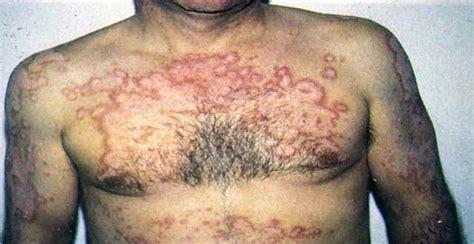 imagenes impactantes del vih sida personas con vih sida related keywords personas con vih