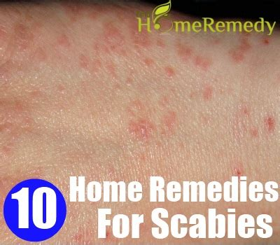 how to treat scabies gallery