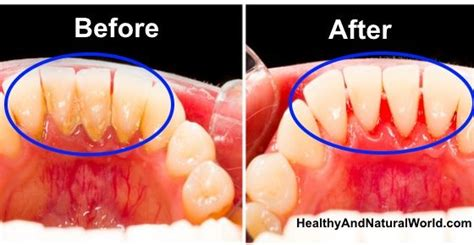 how to remove plaque from s teeth naturally 25 best ideas about the on axe terra essential oils and