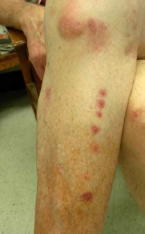 bed bugs bite pictures identification  treatment