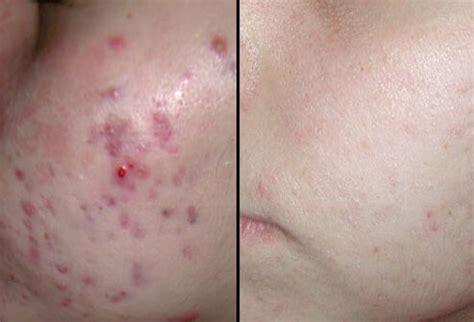 diode laser treatment for acne cosmetic procedures botox laser peels before and after photos