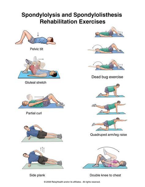 summit spondylolysis and spondylolisthesis rehabilitation exercises physical